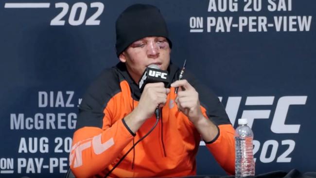 Nate Diaz smoking a vape to recover